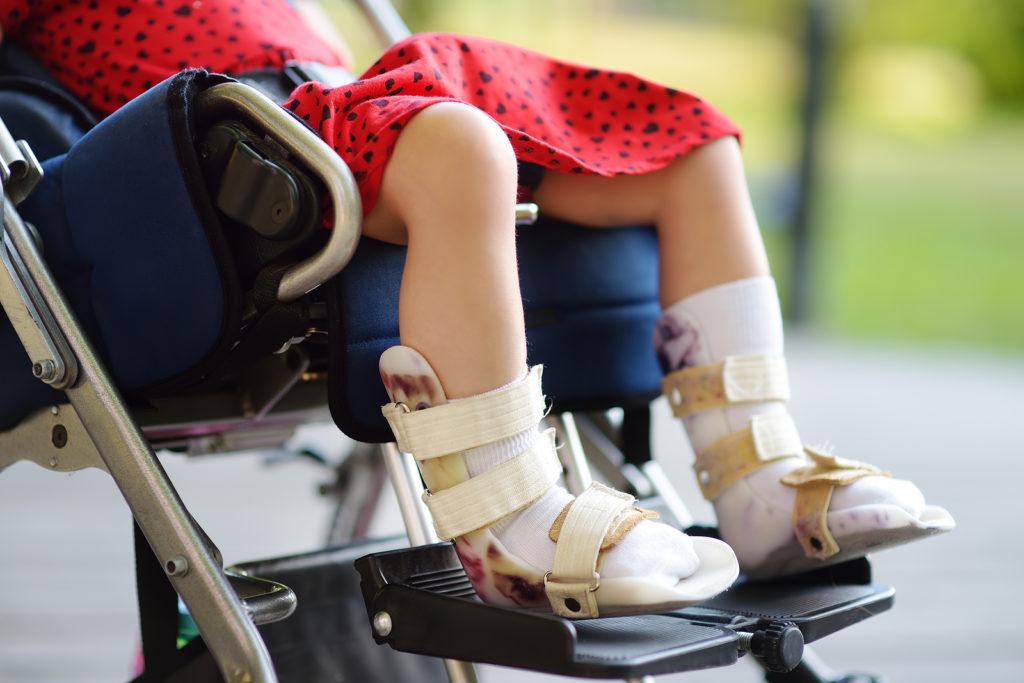 ילדים עם מוגבלות פטורים מתו ירוק