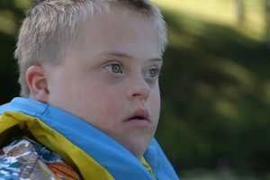 ילד עם תסמונת דאון